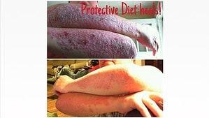 Tece's Protective Diet Journey