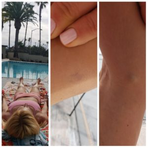 Goodbye spider veins, cellulite & sun damage!
